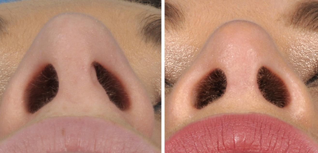 3 maanden na operatie is het litteken nauwelijks zichtbaar