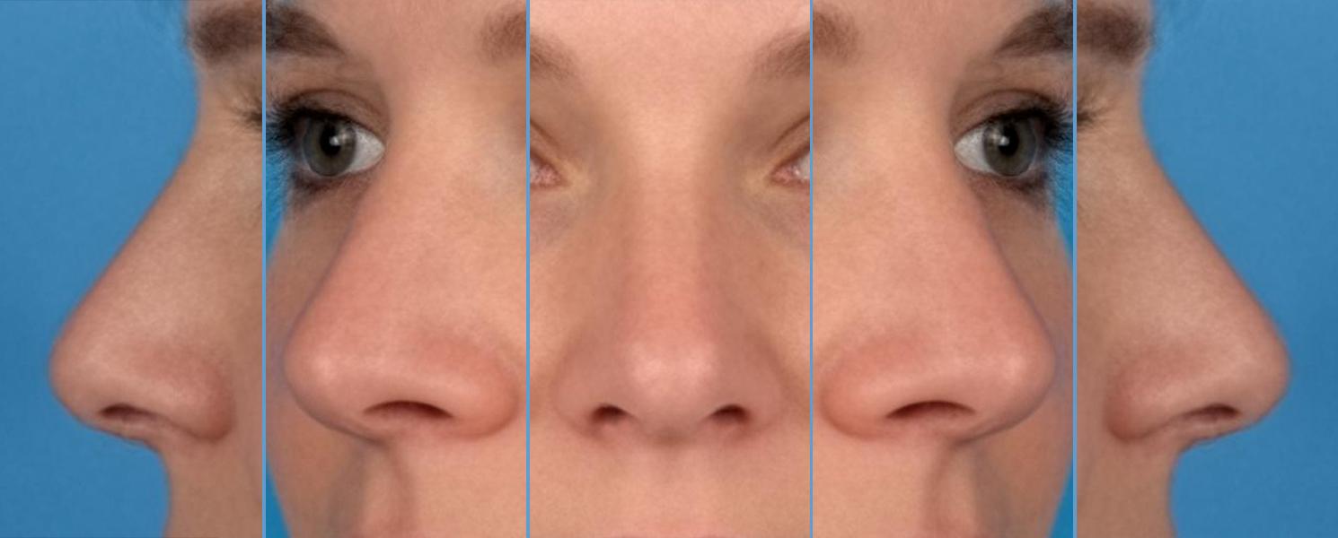 Is een gemiddelde neus een aantrekkelijke neus?