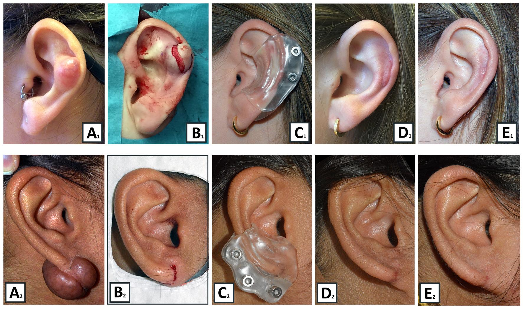 Evaluatie van een combinatie-therapie voor recidiverend auriculair keloid.
